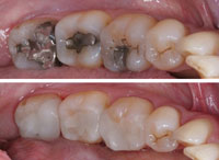 CEREC Crowns replacing regular fillings